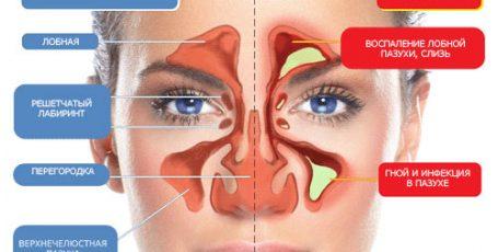 Синусит: симптомы и лечение, формы и профилактика