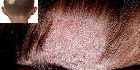 Стригущий лишай у человека: фото, начальная стадия, симптомы и лечение