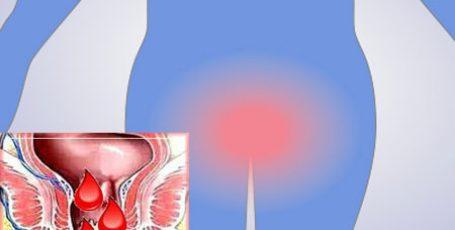 Трещина прямой кишки: симптомы и лечение, причины образования