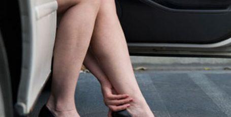 Венозная недостаточность нижних конечностей, симптомы и лечение