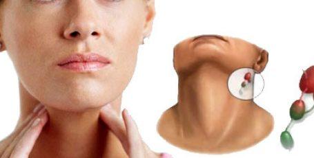 Воспаление лимфоузлов на шее: симптомы и лечение, причины воспаления