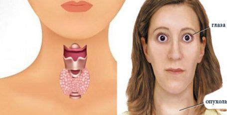Щитовидная железа — симптомы заболевания у женщин