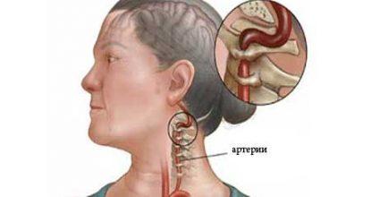 Синдром позвоночной артерии: симптомы, диагностика и лечение