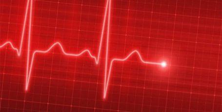 Синусовая аритмия сердца, что это? Признаки, виды и лечение у детей и взрослых