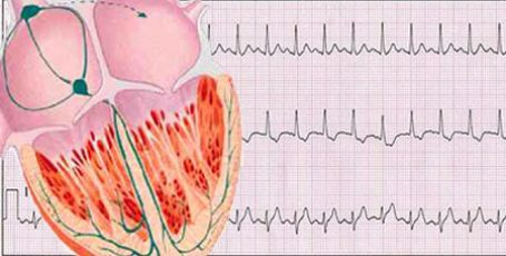 Синусовая тахикардия сердца: симптомы и лечение у детей и подростков