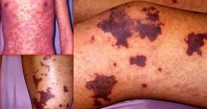 Тромбоцитопеническая пурпура: формы, симптомы у детей и взрослых, лечение