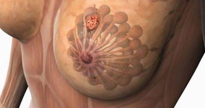 Узловая мастопатия молочной железы: симптомы и лечение, операция