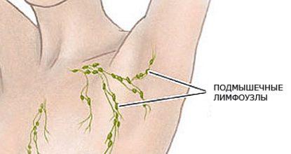 Воспаление лимфоузлов под мышкой: причины и лечение