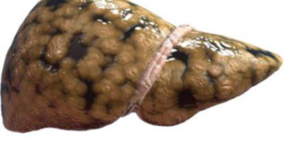 Жировой гепатоз печени: симптомы и лечение, диета, профилактика