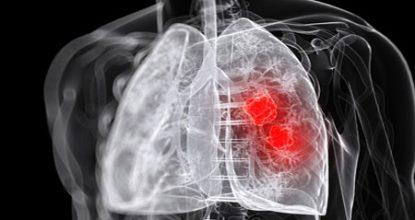 Абсцесс легкого: симптомы, лечение, осложнения и патогенез