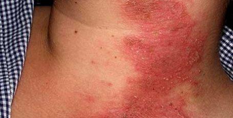 Аллергический дерматит у взрослых и детей: причины, симптомы и лечение