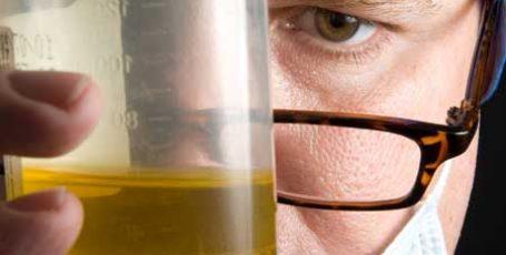 Анализ мазков на флору: расшифровка результата и нормы