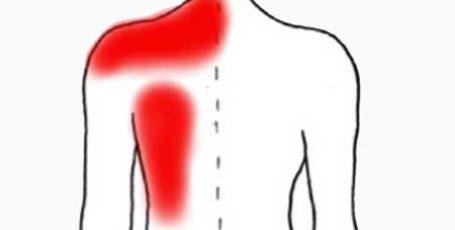Причины боли под левой лопаткой сзади со спины, диагностика и лечение