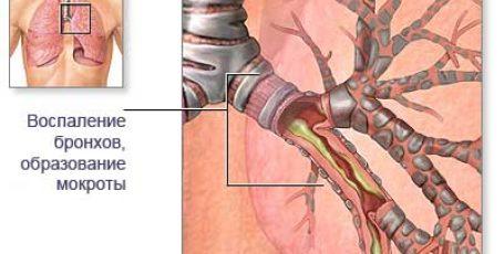 Острый бронхит: симптомы, диагностика и лечение у взрослых