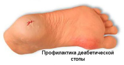 Профилактика диабетической стопы, выбор обуви