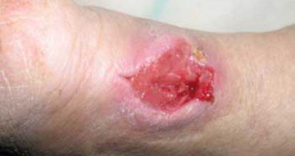 Флегмона: причины возникновения, симптомы и лечение