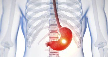Гиперпластический гастрит: причины, симптомы, диагностика и методы лечения