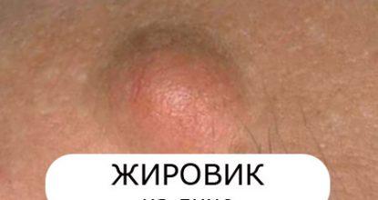 Жировик на лице: причины, фото, как избавиться от жировика