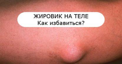 Жировик на теле: причины, фото, как избавиться от жировика