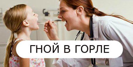 Гной в горле: причины, симптомы, фото — что делать и как лечить?