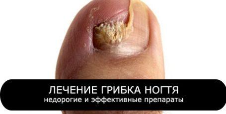 Грибок ногтей: лечение недорогими, но эффективными препаратами