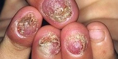 Лечение грибка ногтя запущенная форма — методы и особенности