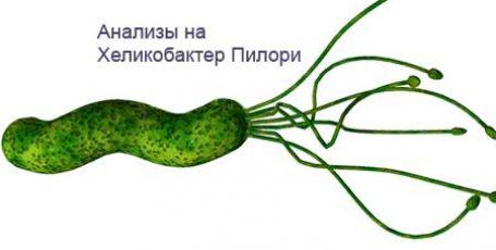Анализы на Хеликобактер Пилори: виды, норма и расшифровка