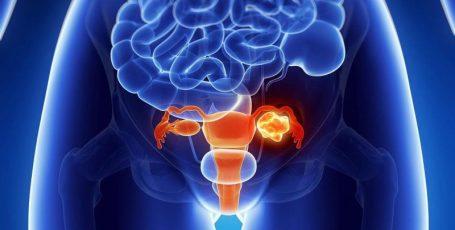 Что такое тератома яичника, причины её возникновения и способы лечения?