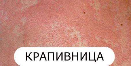 Крапивница (уртикария) у взрослых: причины, симптомы и лечение
