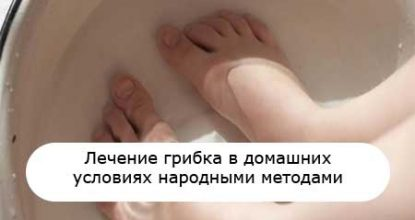 Лечение грибка ногтей и стопы в домашних условиях народными средствами