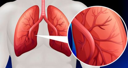 Легочная гипертензия: причины, симптомы, лечение и степени заболевания