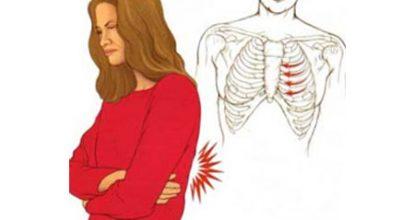 Межреберная невралгия: причины, симптомы и лечение