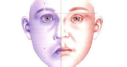 Неврит лицевого нерва: симптомы и лечение, прогноз