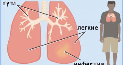 Симптомы пневмонии — виды и особенности проявления