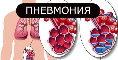 Пневмония у взрослых: Симптомы и методы лечения