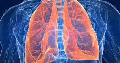 Пневмосклероз легких: причины, симптомы и методы лечения