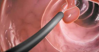 Полипы прямой кишки: симптомы проявления, лечение и удаление
