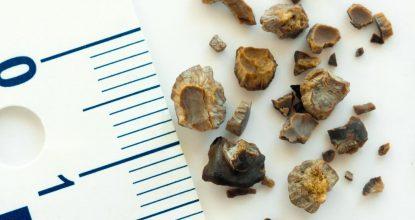 Камни в почках: как избавиться от коварной патологии