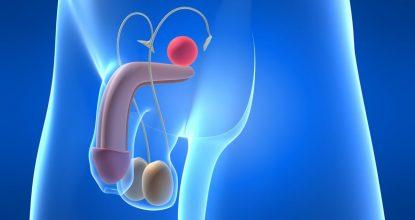 Опасные мужские недуги: рак простаты и методы его лечения