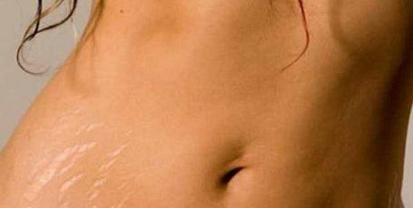 Растяжки после родов: как избавиться от неприятного дефекта