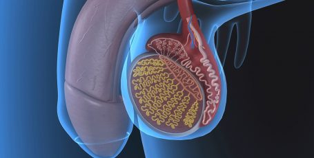 Заболевания мужской половой сферы: что такое баланит и как эффективно избавиться от недуга