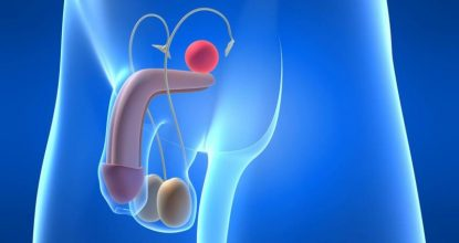 Рак полового члена: деликатная мужская проблема