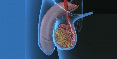 Операция Мармара при варикоцеле: все нюансы хирургического вмешательства