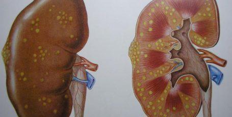 Как распознать пиелонефрит: характерные симптомы и надёжные методы диагностики