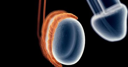 Хронический эпидидимит: как справиться с воспалением