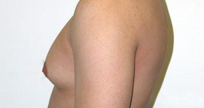 Гинекомастия: что делать с увеличенной грудью у мальчиков