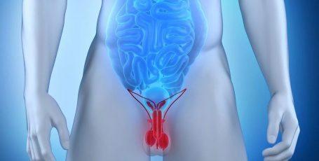 Мужские недуги: что такое варикоцеле 3-й и 4-й степени