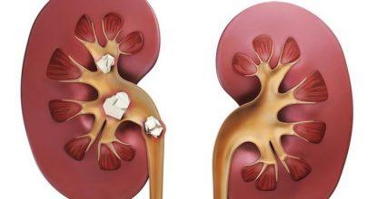 Медикаментозное лечение мочекаменной болезни: какие лекарства помогут справиться с проблемой