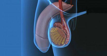 Лечение варикоцеле народными средствами