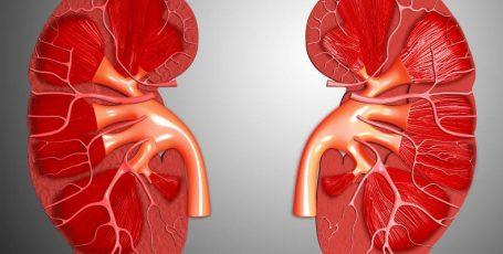 Ангиомиолипома почки: опухоль может быть доброкачественной